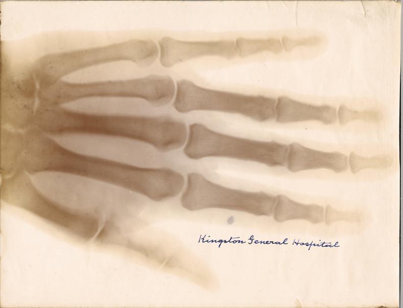 X-Ray Print (1896)