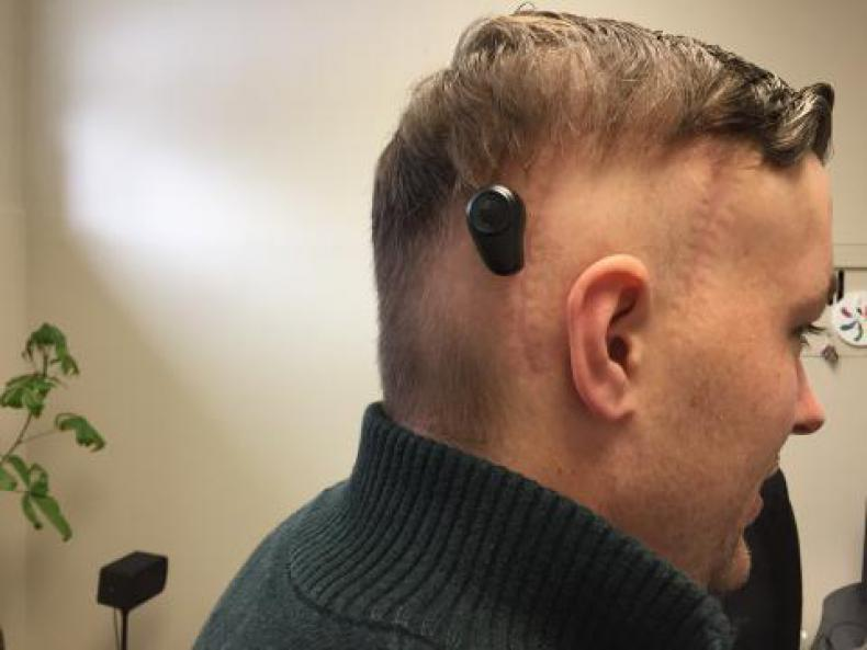 """In the BAHA procedure, a titanium implant is surgically placed into the bone behind the ear.  Once the implant has healed in place, a sound processor is attached and activated, providing transmission of sound and significant hearing improvement for the patient.  Kingston's first BAHA recipient, Adam Pennock (pictured here), describes the technology as """"very cool."""""""