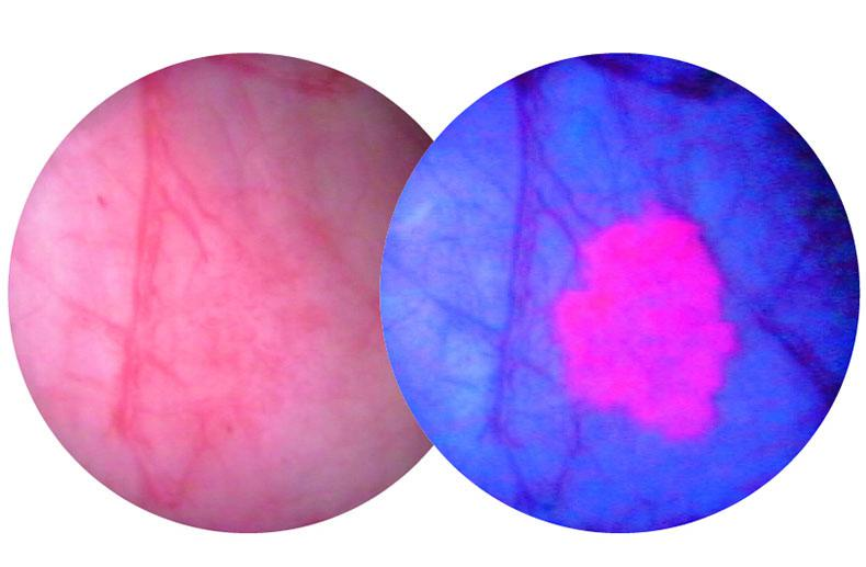 A bladder tumour as seen through a white light scope (L) and a blue light scope (R)