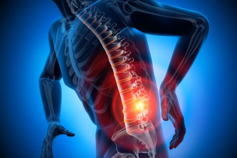 back pain graphic